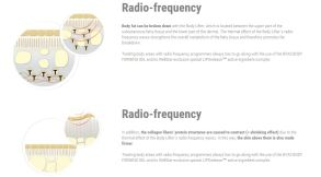 15 23 12 Radio-Frequency Body
